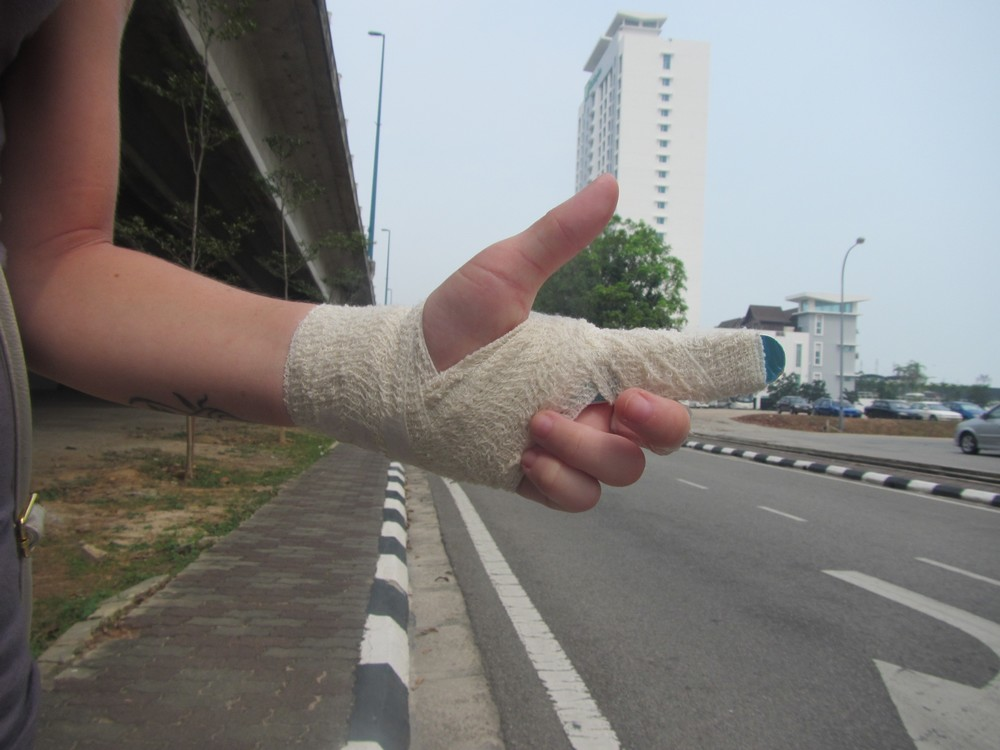 Unas fractured finger - we are hitchhiking